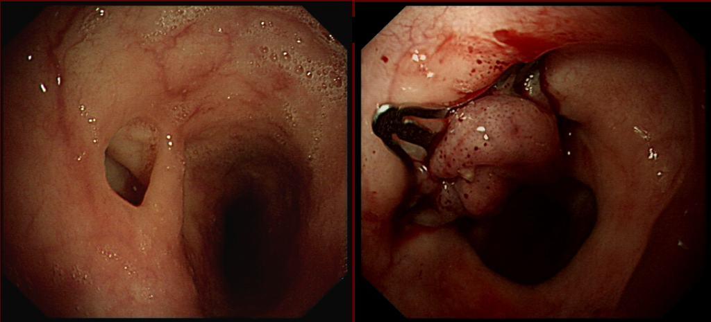 Padlock Fistula Closing