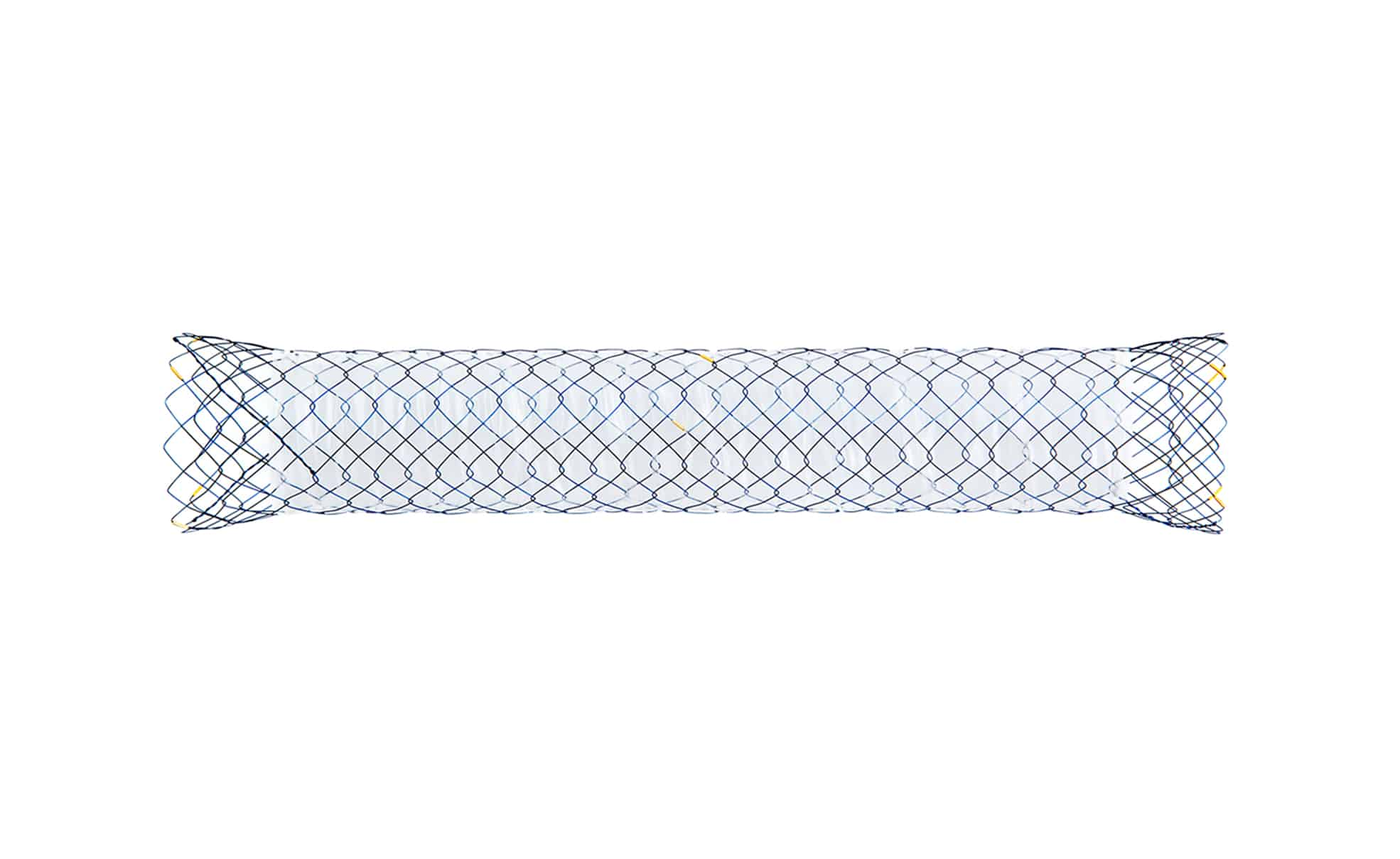 TLC Partially Covered Colonic Stent